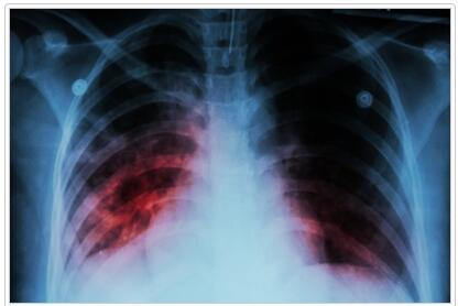 Acute Respiratory Failure Definitions
